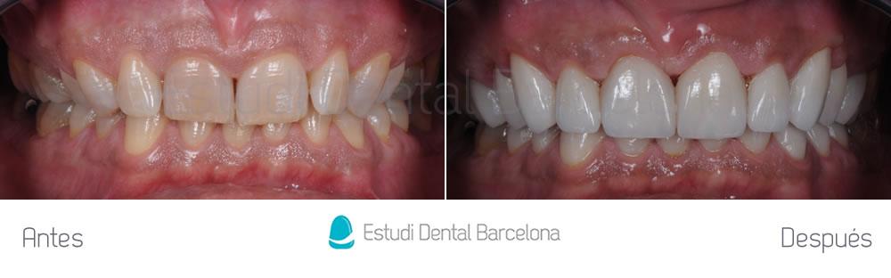 dientes-oscuros-y-malposicion-dental-antes-y-despues-apretando