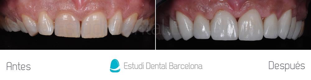 dientes-oscuros-y-malposicion-dental-antes-y-despues-arcada-superior