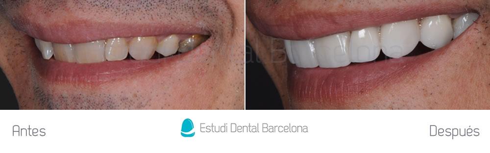 dientes-oscuros-y-malposicion-dental-antes-y-despues-izquierdajpg