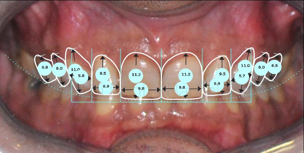 dientes-oscuros-y-malposicion-dental-caso-de-carillas-proporciones