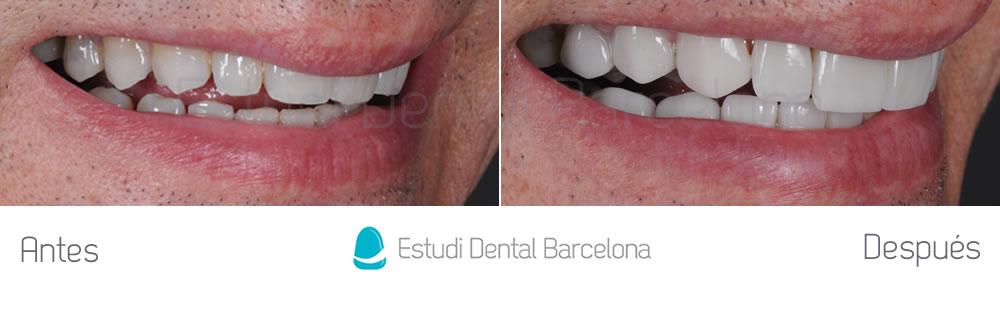 dientes-oscuros-y-rejuvenecimiento-de-sonrisa-caso-de-carillas-antes-y-despues-derecha