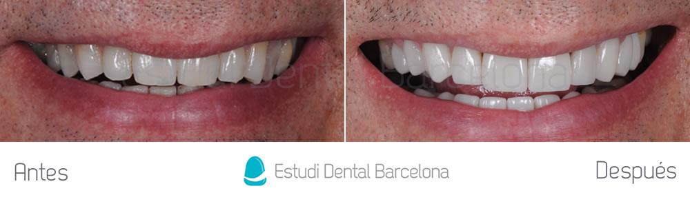 dientes-oscuros-y-rejuvenecimiento-de-sonrisa-caso-de-carillas-antes-y-despues-frente