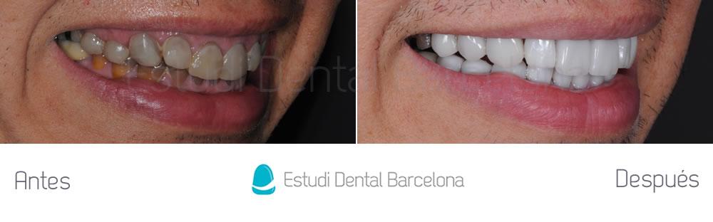 dientes-oscuros-y-tetraciclinas-caso-clinico-carillas-derecha