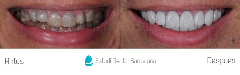 dientes-oscuros-y-tetraciclinas-caso-clinico-carillas-frente