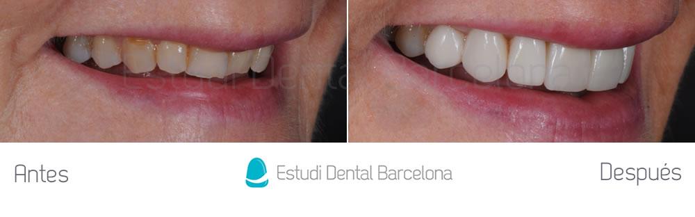 dientes-rotos-y-desgastados-antes-y-despues-carillas-dentales-derecha