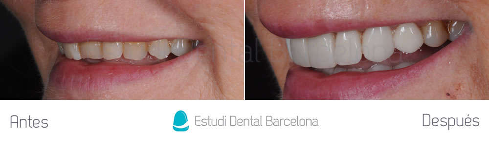 dientes-rotos-y-desgastados-antes-y-despues-carillas-dentales-izquierda