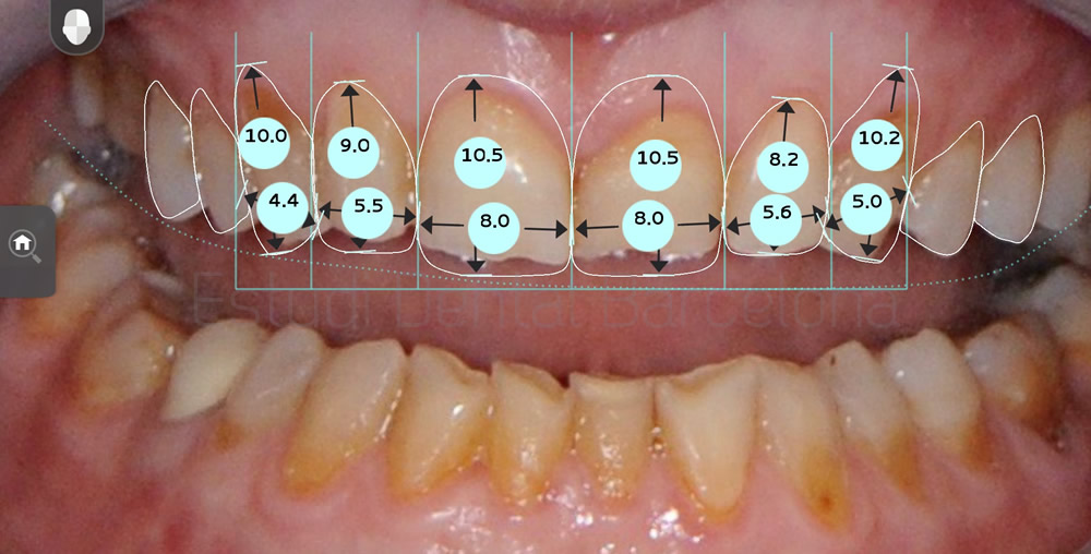 dientes-rotos-y-desgastados-antes-y-despues-carillas-dentales-proporciones
