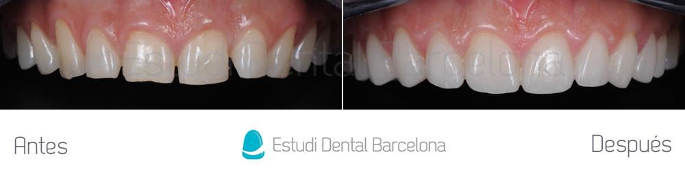 espacios-abiertos-entre-dientes-carillas-dentales-antes-y-despues-arcada-superior