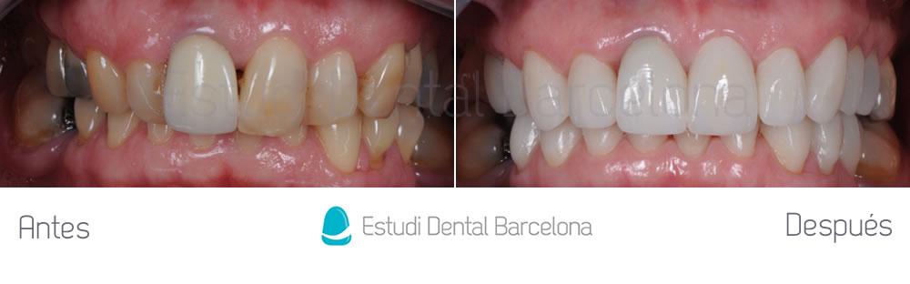 malposicion-y-rejuvenecimiento-dental-antes-y-despues-carillas-dentales-apretando