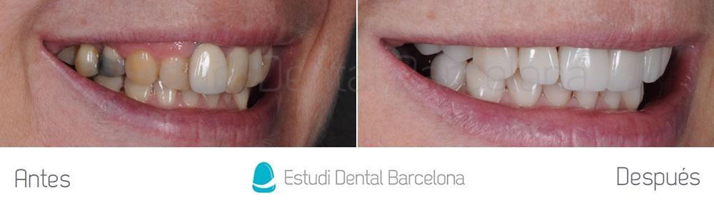 malposicion-y-rejuvenecimiento-dental-antes-y-despues-carillas-dentales-derecha