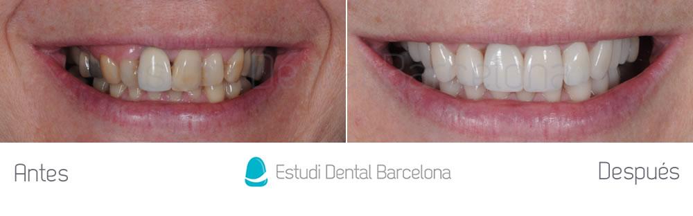 malposicion-y-rejuvenecimiento-dental-antes-y-despues-carillas-dentales-frente