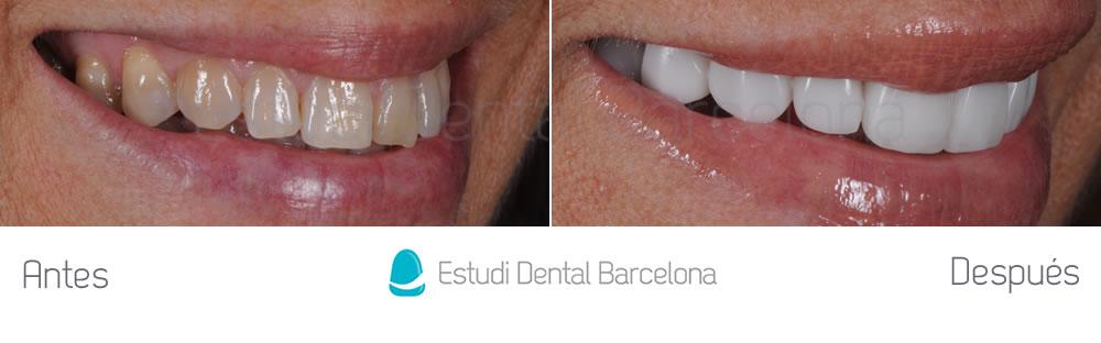 rejuvenecimiento-dental-y-microcarillas-de-porcelana-antes-y-despues-derecha