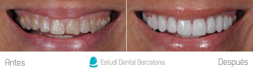 rejuvenecimiento-dental-y-microcarillas-de-porcelana-antes-y-despues-frente