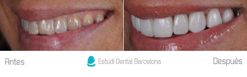 rejuvenecimiento-dental-y-microcarillas-de-porcelana-antes-y-despues-izquierdajpg