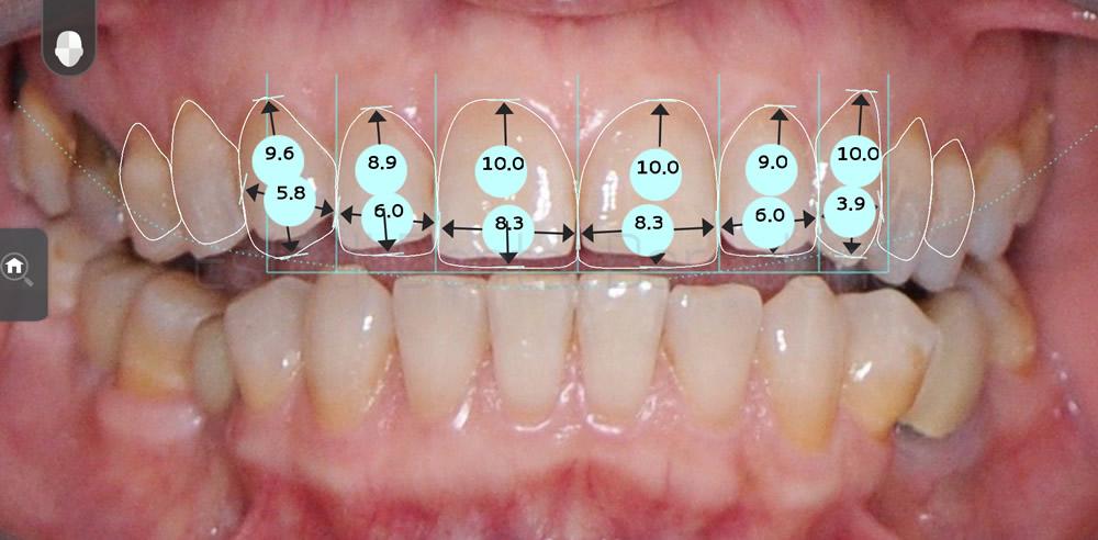 rejuvenecimiento-dental-y-microcarillas-de-porcelana-antes-y-despues-proporciones