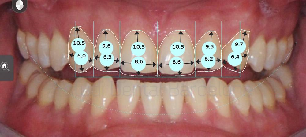 caso-clinico-carillas-de-porcelana-proporciones1