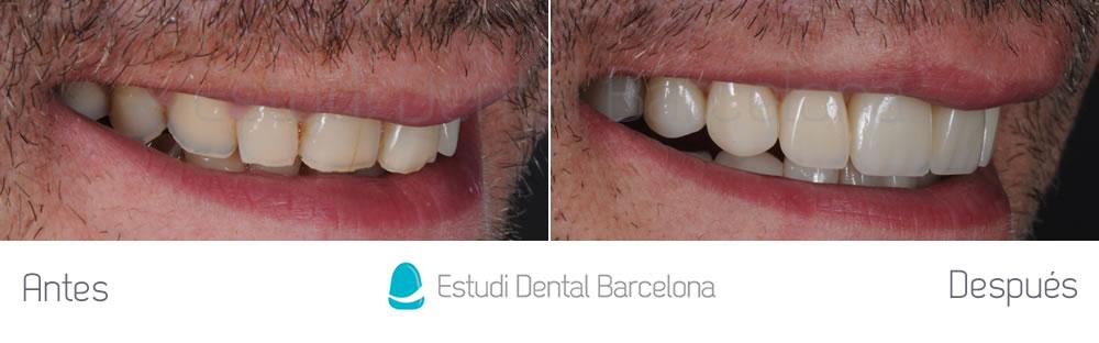 caso-mejorar-dientes-desgastados-con-carillas-dentales-derecha