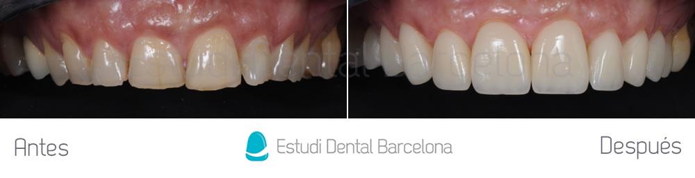caso-mejorar-dientes-desgastados-con-carillas-dentales-frente-superior1