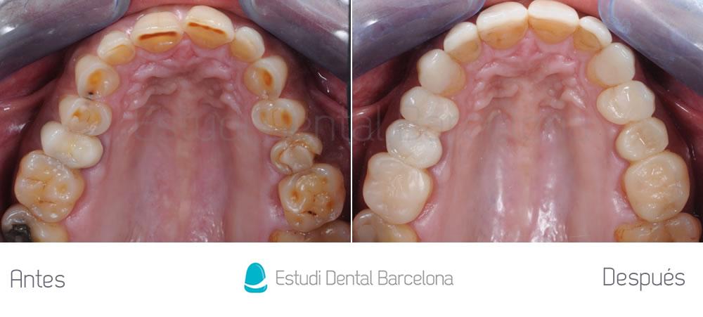 caso-mejorar-dientes-desgastados-con-carillas-dentales-interior-1
