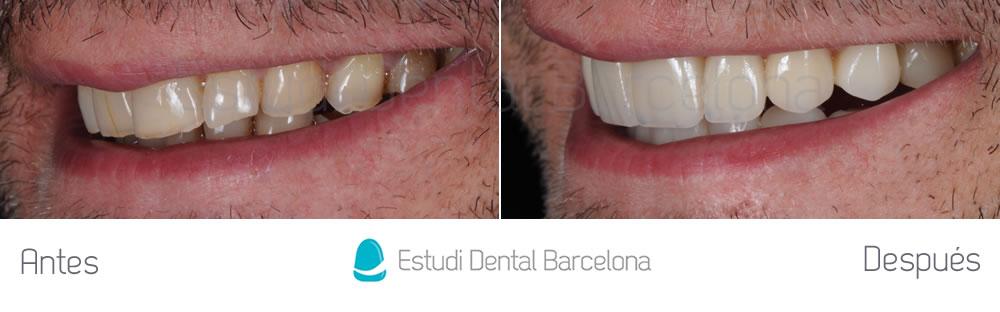 caso-mejorar-dientes-desgastados-con-carillas-dentales-izquierda