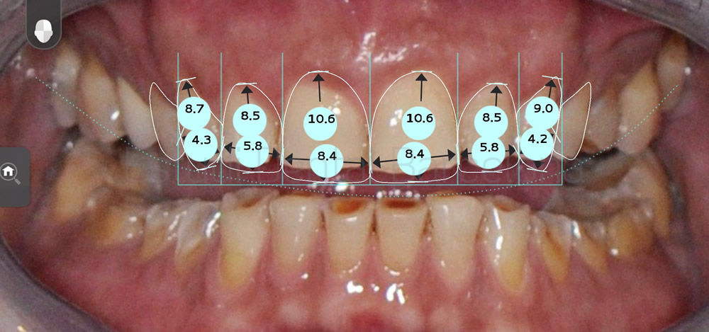 caso-mejorar-dientes-desgastados-con-carillas-dentales-proporciones