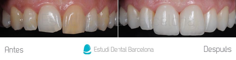 Corregir-dientes-manchados-y-rotos-con-carillas-de-porcelana-y-blanqueamiento-aracada-superior