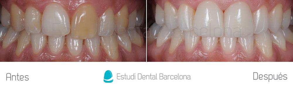 Corregir-dientes-oscuros-con-carillas-de-porcelana-y-blanqueamiento-caso-antes-y-después-apretando