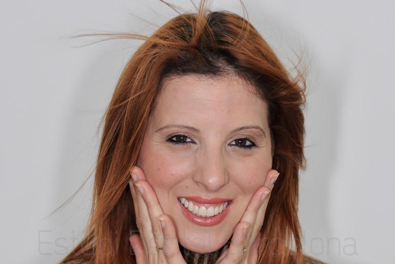Carillas-de-porcelana-Invisalign-implantes-dentales-resultado-Lorena