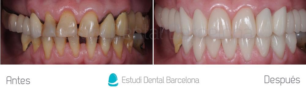 cambiar-puente-dental-con-carillas-y-coronas-y-blanqueamiento-y-mejorar-el-aspecto-la-boca-apretando