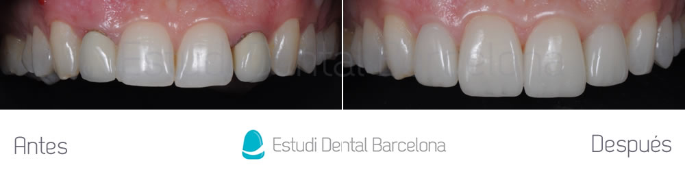 como-tener-dientes-mas-grandes-con-carillas-dentales-caso-clínico-antes-despues-arcada-superior