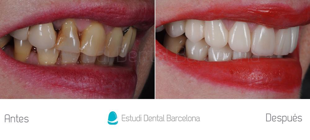dientes-feos-como-mejorar-con-carillas-y-coronas-dentales-y-blanqueamiento-fotos-derecha