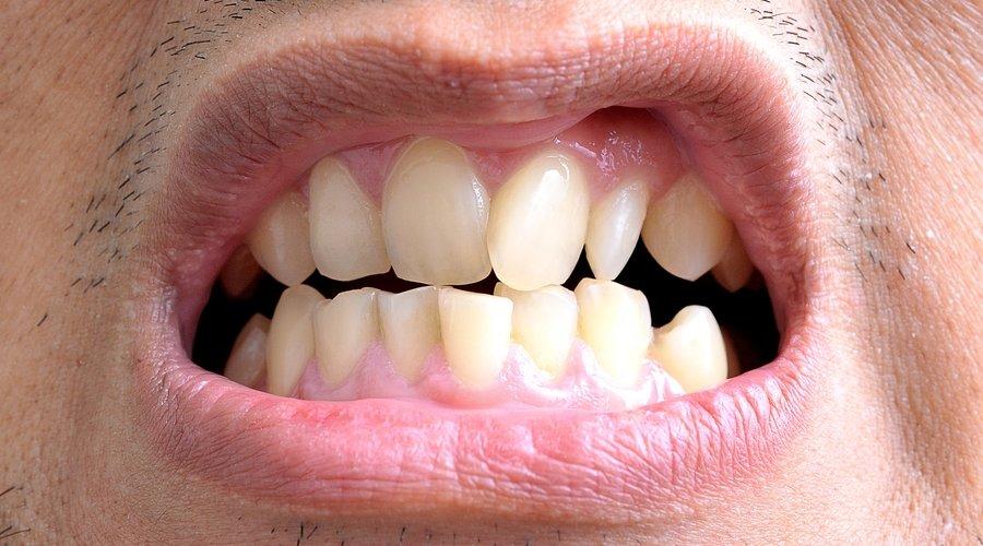 Cuál Es El Tratamiento Para Los Dientes Torcidos Estudi Dental