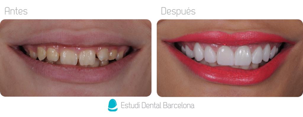 Fotos antes y después de carillas de Porcelana Barcelona