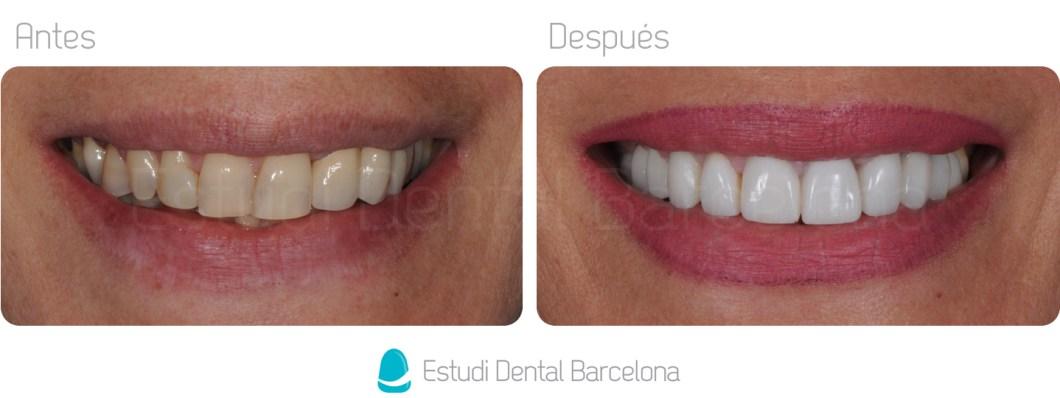 Coronas Dentales Barcelona Dientes Blancos