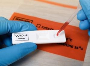 Medikuaren agiririk gabe saldu ahalko dira COVID-19a detektatzeko test azkarrak