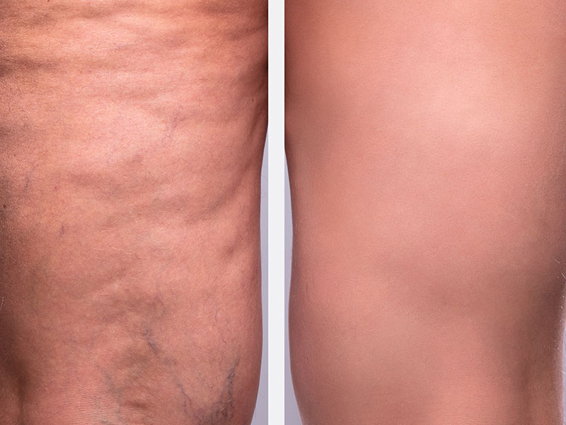 Cellulite Reduction Before And After