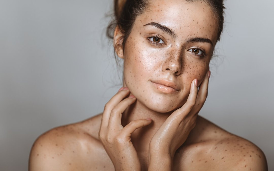 Can you treat pigmentation, so it stays away permanently?