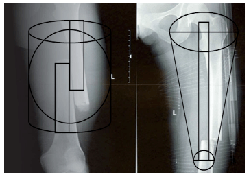 Femoral traction 3