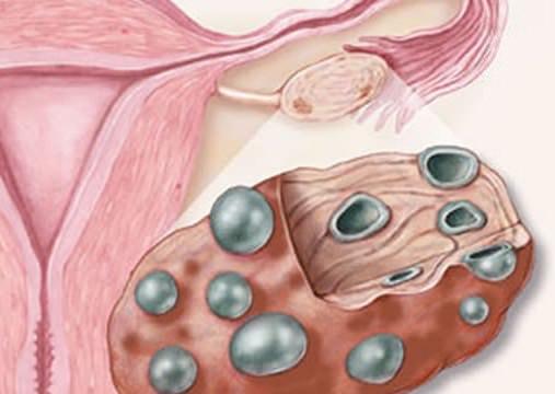Гиперинсулинемия и ее лечение