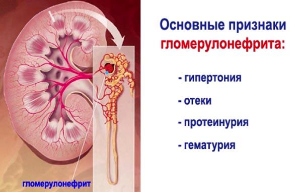 moterų dažniau serga hipertenzija su hipertenzija jie geria Corvalol