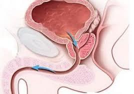 Exodus prosztatitis how to sleep better with enlarged prostate