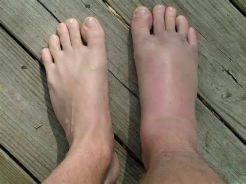 tratamentul artrozei piciorului datorată picioarelor plate