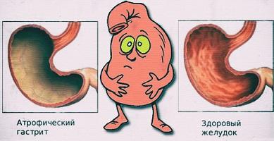 ar galima zefyras su hipertenzija