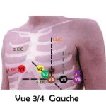 Planche montrant la position des électrodes ECG
