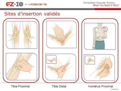 Sites validés pour l'injection intra osseuse