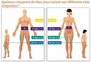 épaisseur du tissu sous-cutané en fonction du sexe et de la localisation
