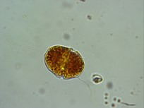 A dinoflagellate