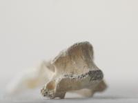 Пораженные болезнями старинные кости оцифрованы в Великобритании