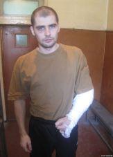 Oleksandr Kostenko's arm was broken. Photo: krymr.com