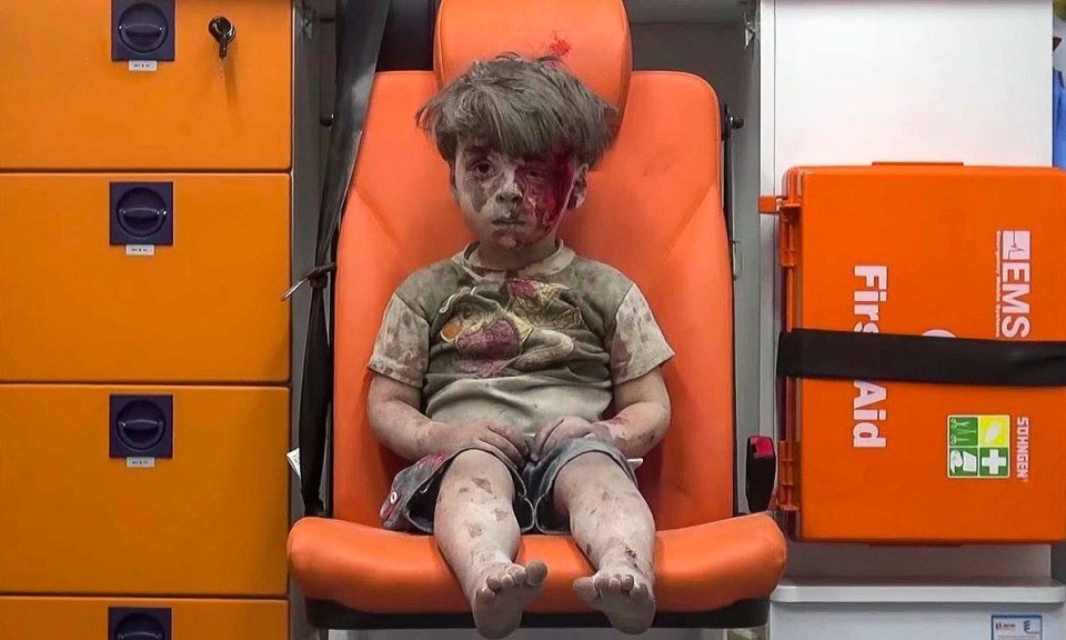 This boy's name is Omran. His family's house in Aleppo was hit by one of the Russian bombs that flatten everything within their kill zone. Aleppo, Syria, August 2016 (Photo: Mahmoud Rislan)